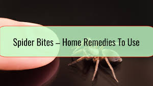 Easy Home Remedies For Spider Bites